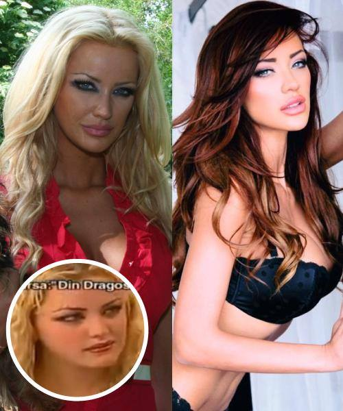 Bianca Drăgușanu înainte și după operațiile estetice