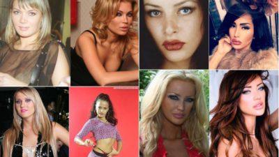 Ce operații estetice și-au făcut vedetele din România. Transformările sunt șocante