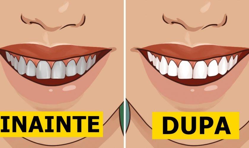 Ce mai folosești pe lângă bicarbonat de sodiu când îți albești dinții. Ai toate ingredientele în casă