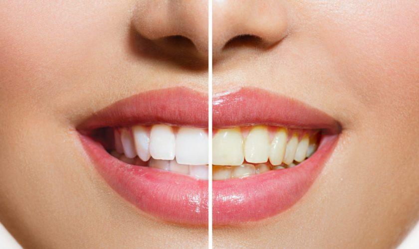 Cum îți albești dinții cu bicarbonat de sodiu. Trucul simplu de făcut acasă