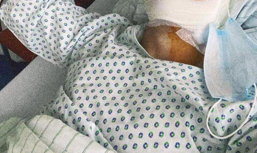 Cântăreț din România, operat de urgență la cap. Fanii s-au îngrozit când au văzut cum arată acum