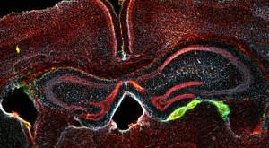 Și sângele neuron se făcu: Oamenii de știință au făcut o descoperire majoră
