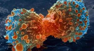 Accesoriul pentru telefon care ar putea detecta cancerul de piele