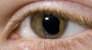Operația care te scapă de orbire în 5 minute există și nu e doar un proiect