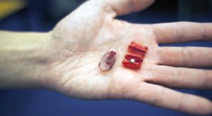 """Acest """"robot"""" încape într-o pilulă și te poate scăpa de problemele cu stomacul"""