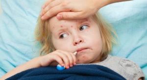 Ce este rujeola și de ce e important vaccinul