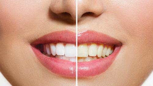 Adevărul despre albirea dinților, de la bicarbonat de sodiu la lămâi