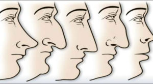 Clima ar fi putut influența evoluția formei nasului uman