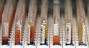 Testele ADN pentru acasă îți arată la ce boli ești predispus