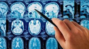 Acest mecanism complex îți poate citi mintea cu o înfricoșător de mare acuratețe
