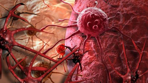 Efectele neașteptat de devastatoare ale unui tratament contra cancerului