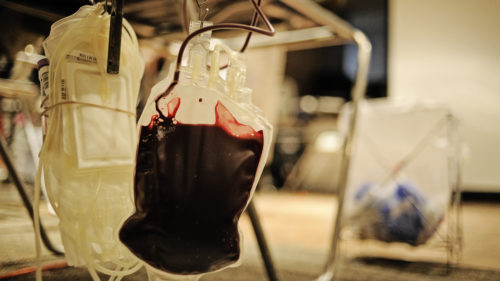 Tratament special pentru pacienții din România: ministrul a anunțat că are deja 3 aparate