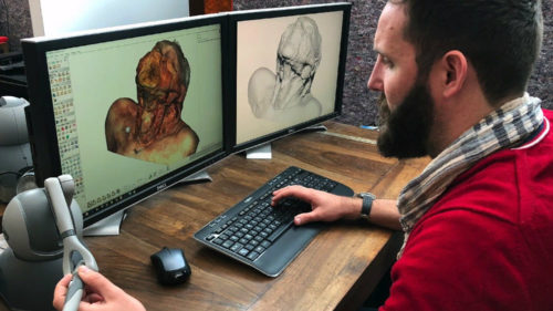 realitatea virtuală chirurgi