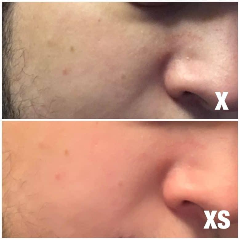 X_vs_XS_blemish_filter-780x780
