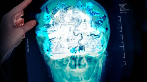 Ce este o interfață creier-computer și ce lucruri uimitoare va putea face în viitor