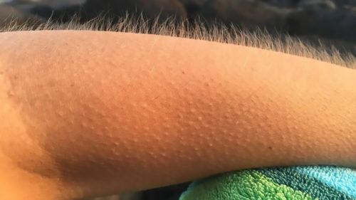 Piele de găină: de ce ți se ridică părul pe mână când asculți muzică și ce spune asta despre creierul tău