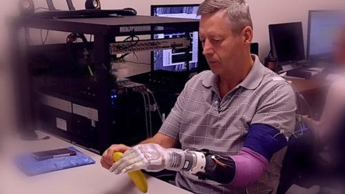 Inspirat din Star Wars, un braț robotic i-a redat abilitatea de a-și folosi mâna