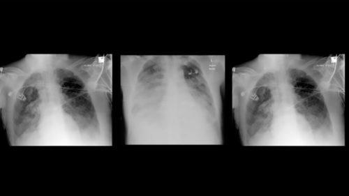 Adevăratele consecințe pe termen lung ale infecției cu coronavirus: ce se întâmplă cu plămânii