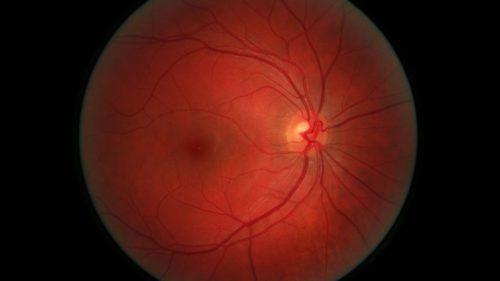 A fost premiat pentru procedura care ar putea vindeca orbirea