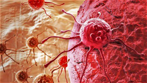Un nou tratament împotriva cancerului în stadiu avansat face minuni