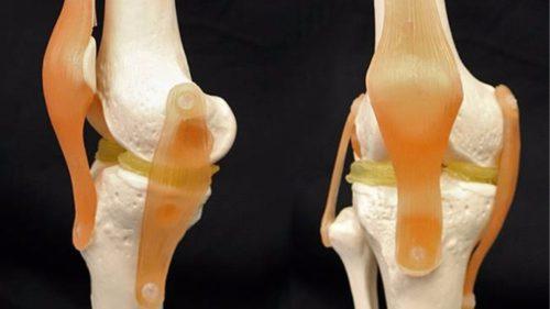 Tehnica prin care reumatismul ar putea deveni istorie: cum funcționează aceste cartilaje printate 3D