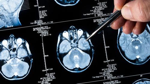 Tehnologia care poate detecta semnele afecțiunii Alzheimer doar după scrisul de mână
