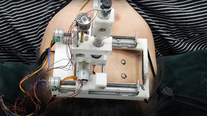 Acest startup vrea să-ți tatueze pe craniu electrozi care-ți citesc mintea. La ce ajută această tehnologie inovatoare