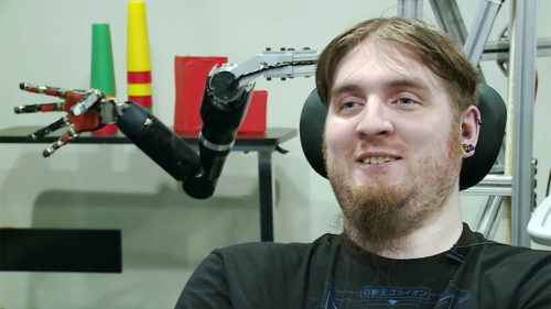 Povestea bărbatului care are un implant în creier și poate controla roboții cu puterea minții