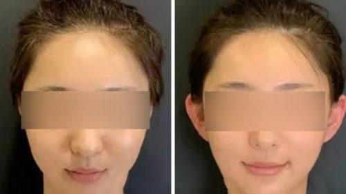 Cel mai ciudat trend estetic vine din China: de ce se caută urechile de elf